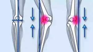 Knee Varus Orthotic Insoles