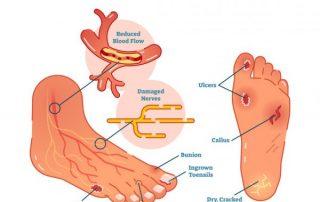 diabetic foot medical